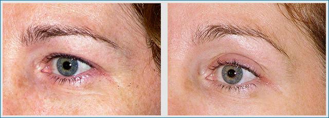 Thermage Augen Behandlung