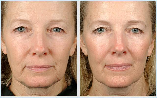 Thermage Gesicht Behandlung