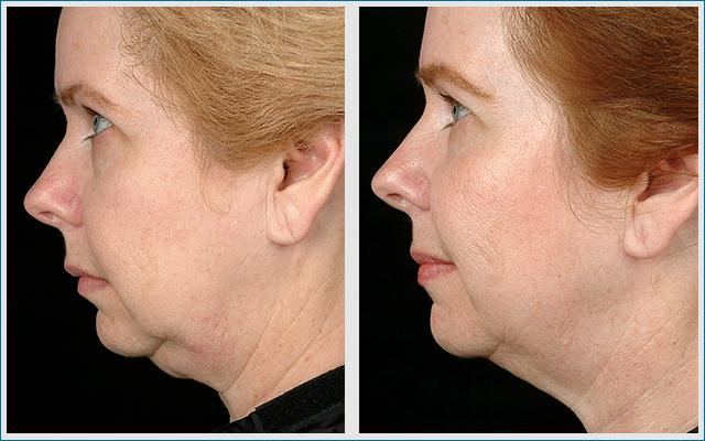 Thermage Hals Behandlung