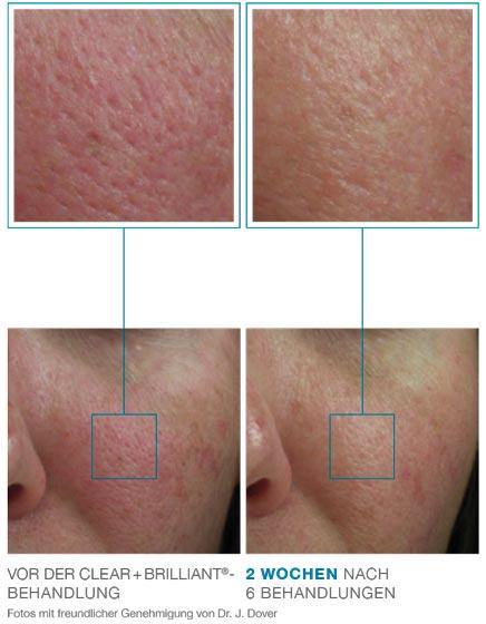 Lösung für grosse Poren - Clear und Brilliant